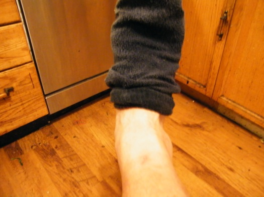 Swollen ankle after coming home from x-rays.